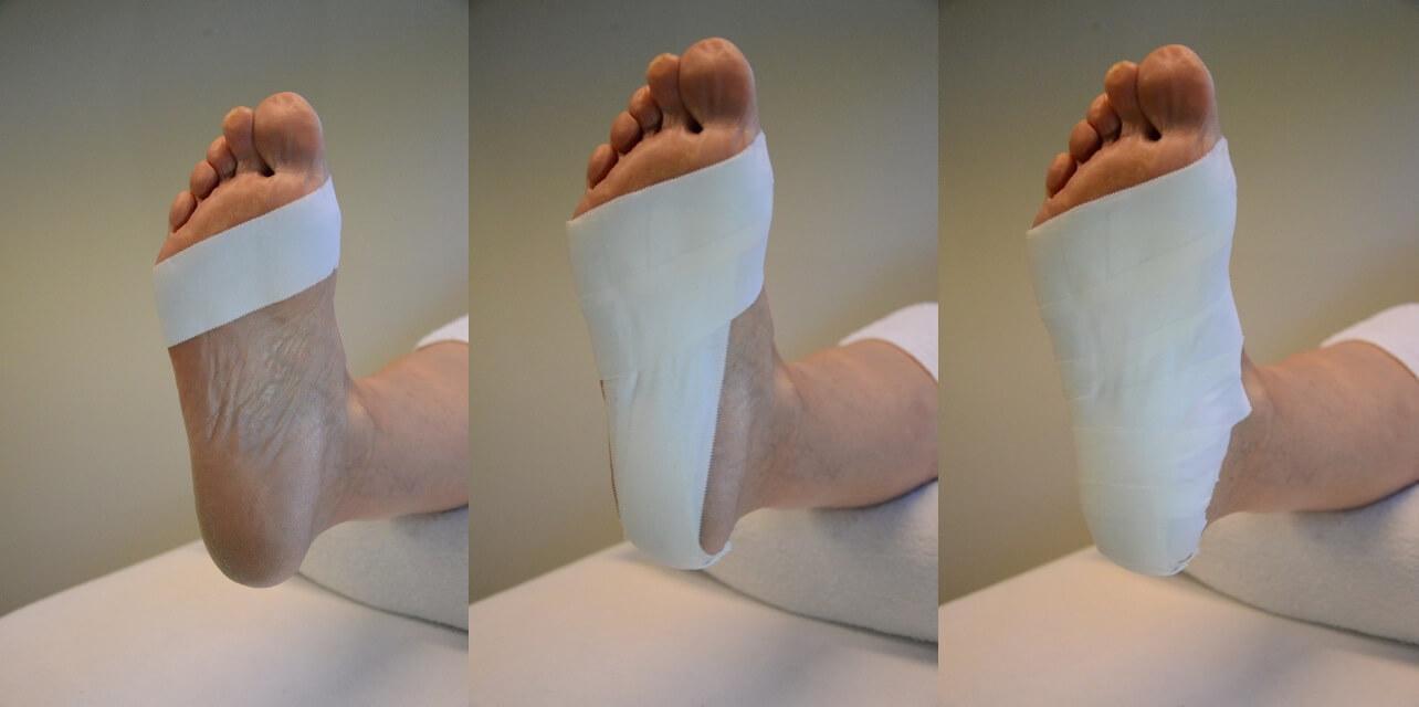 Sporttape bij behandeling van hielspoor en andere voetklachten